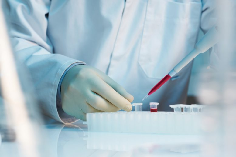 stem cell therapy for lupus
